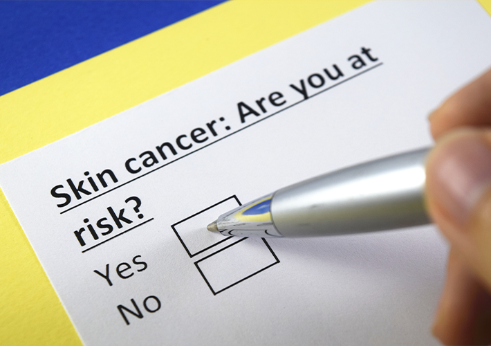 Skin Cancer Are You At Risk